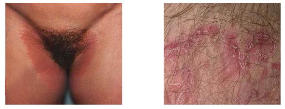 Is Jock Itch (Tinea Cruris) Contagious? - MedicineNet Severe jock itch photos